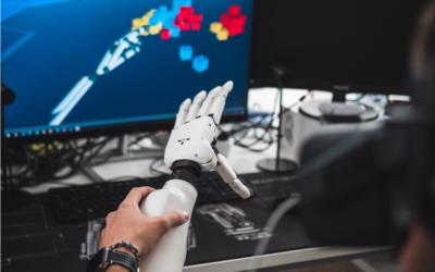 Ember Arm – felsővégtagi myoelektronikus protézis